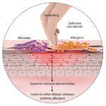 Новый британский обзор по атопическому дерматиту
